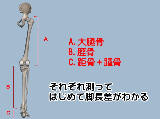 脚長差を語るなら各骨の測定を!